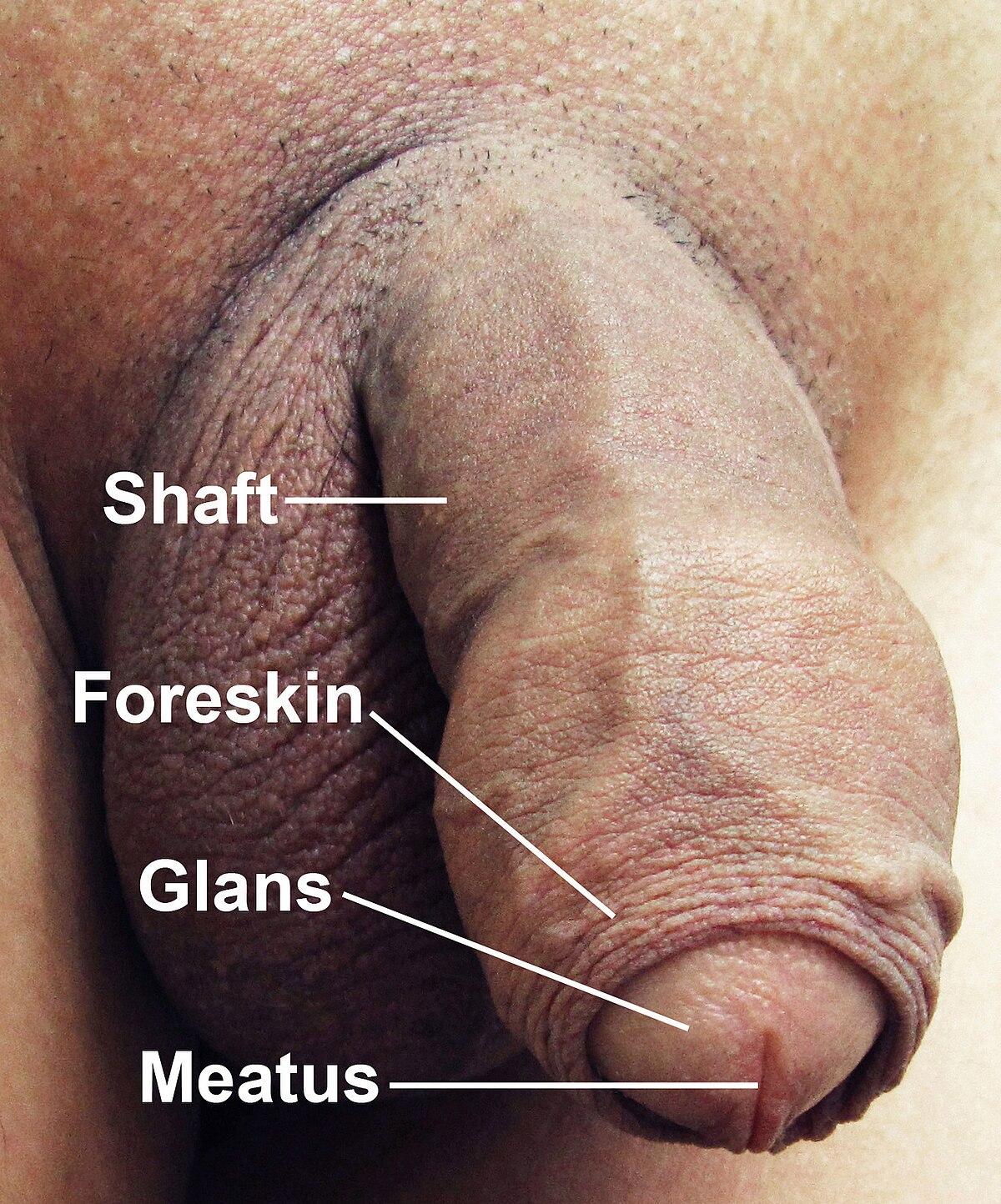 Am un penis de 30 cm care este numele bolii dacă nu există erecție