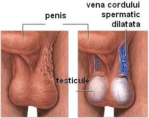 ce dimensiuni ale penisului sunt considerate normale