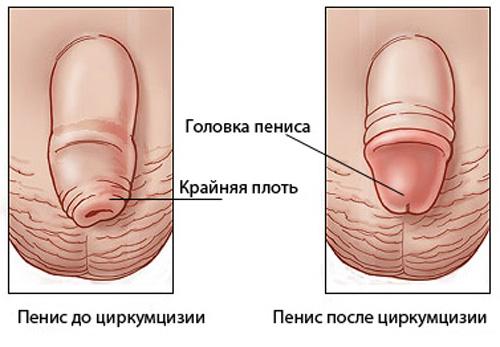 erecție la boxeri erecție de calciu