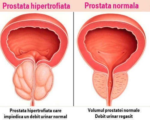 prostatită și disfuncție erectilă care organe sunt responsabile de erecție