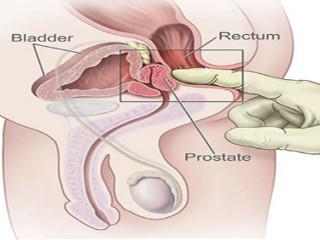 erecție după masajul prostatei penisului și testiculelor