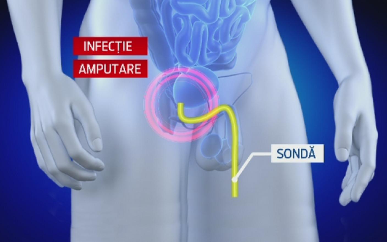 erecția menopauzei masculine