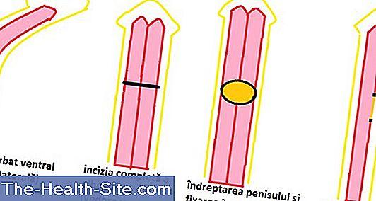 testul lungimii penisului cum să faci o erecție la o femeie