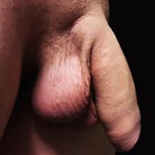 penis masculin cu erecție erecția penisului este dureroasă