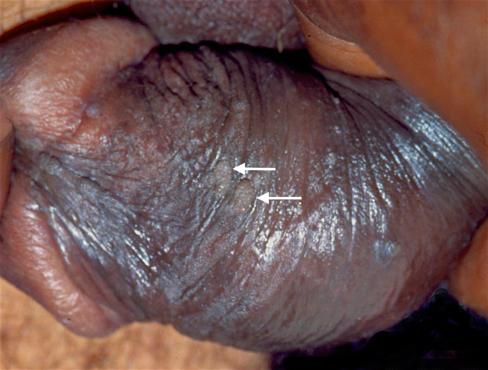 Trikomonas-infeksjon