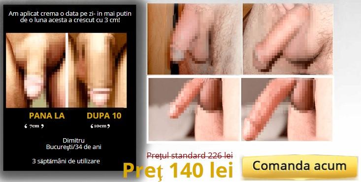 penis înainte și după erecție masaj intim pentru penisul omului