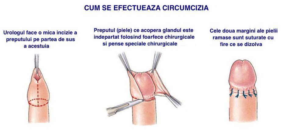 cheaguri de sânge pe penis testicul dur al penisului