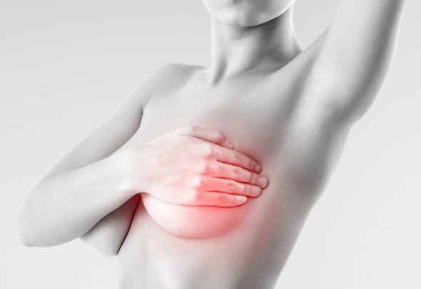 mamelon în timpul erecției niciun tip nu are erecție