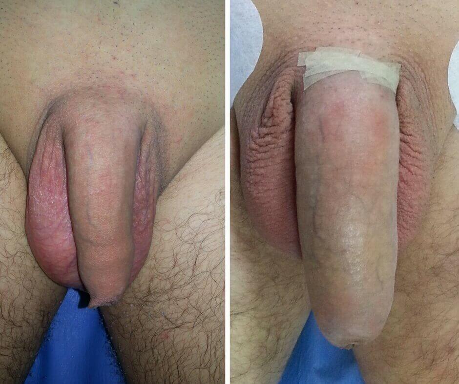 penis înainte și după erecție ce ar trebui să știe un bărbat despre penisul său