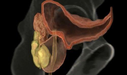 poate exista o erecție bună cu prostatită